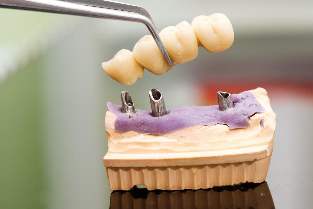 dental bridge in lab | Dental Bridges in Dillon CO | Summit Dental Group