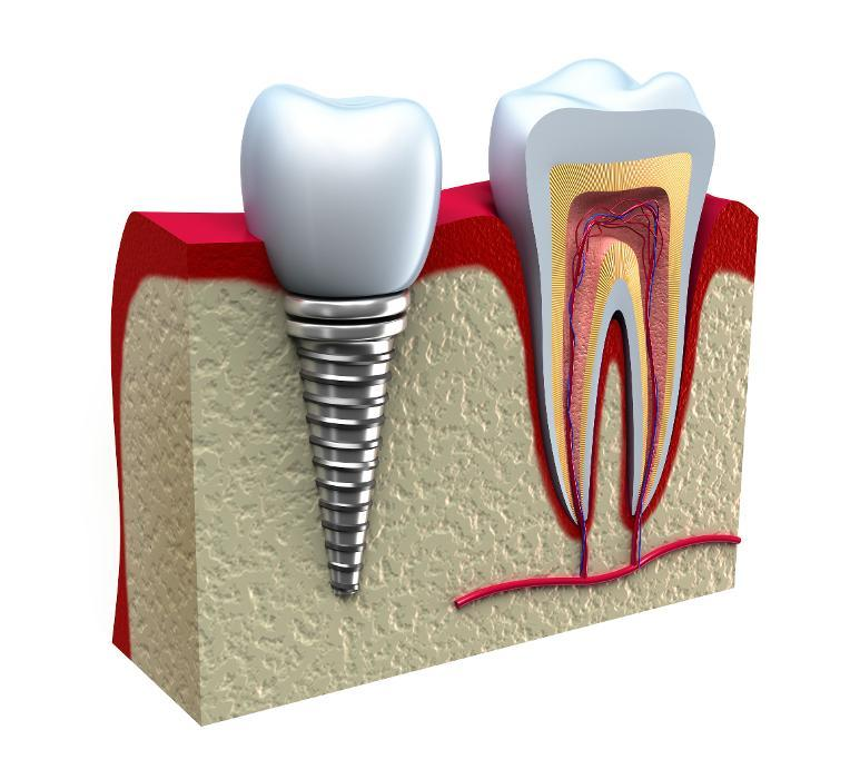 dental implants diagram | Dental Implants in Dillon CO | Summit Dental Group